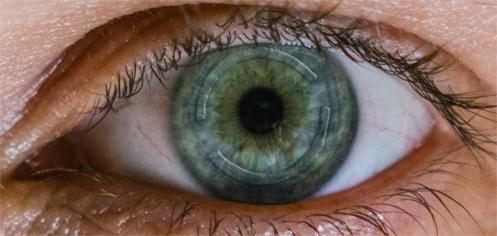 implante de Anel Intraestromal ou também chamado, anel de Ferrara